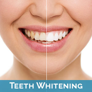 Claremont Teeth Whitening
