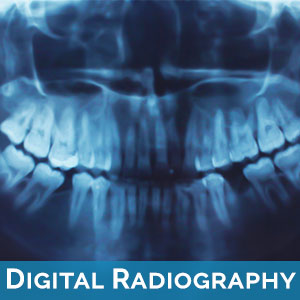 Digital Radiography in Newton